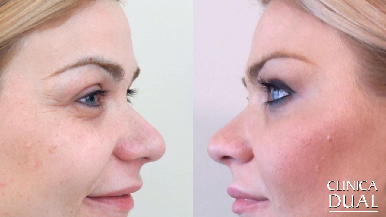 Fotos antes y después de tratamiento de Bótox Clínica Dual Valencia