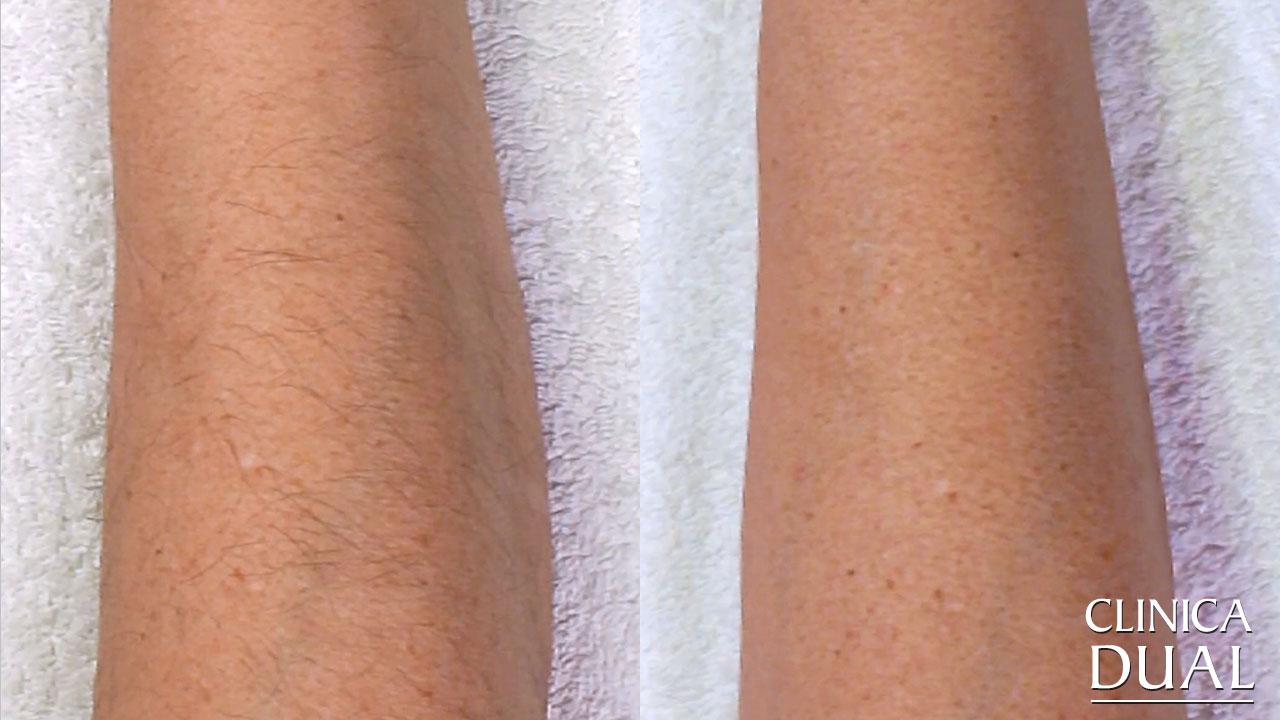Fotos antes y después de tratamiento de depilación láser Clínica Dual Valencia