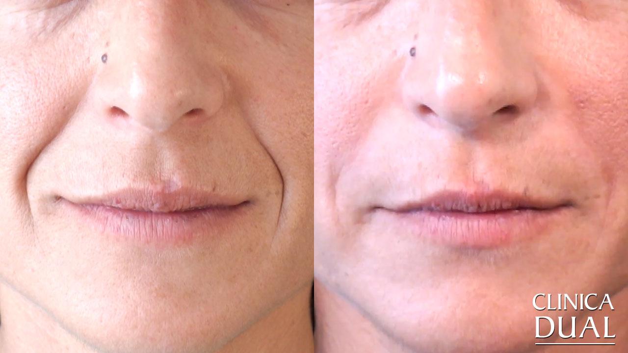 Antes y después de tratamiento de relleno de arrugas Clínica Dual Valencia