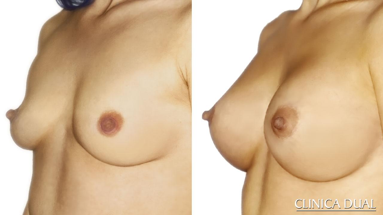 Antes y después de un Aumento de Pecho. Clínica Dual Valencia