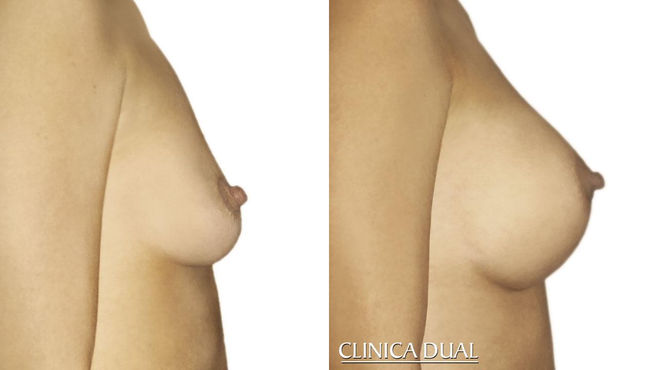 Antes y después de un Aumento de Pecho. Foto de perfil. Clínica Dual Valencia