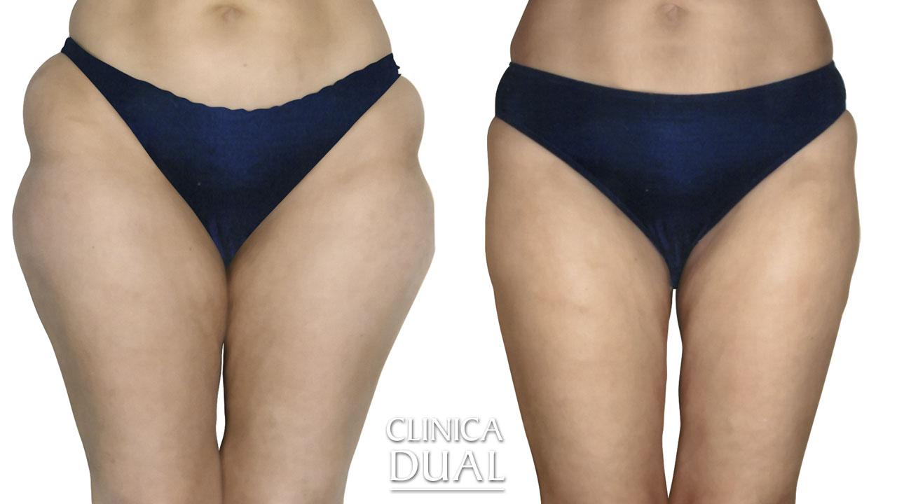 Antes y después de una Liposucción. Clínica Dual Valencia