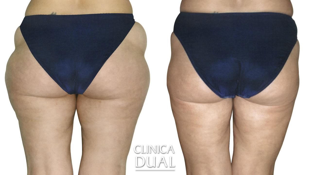 Antes y después de una Liposucción. foto trasera. Clínica Dual Valencia