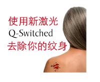 使用新激光Q-Switched去除你的纹身 | DUAL 诊所