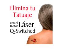 Elimina tu Tatuaje con el Láser Q-Switched de la Clínica Dual de Valencia