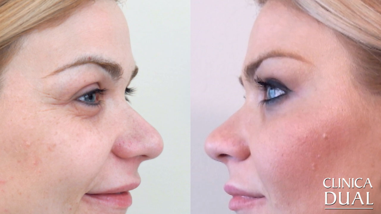 Before-and-After a Botox treatment's pictures | Clínica Dual Valencia