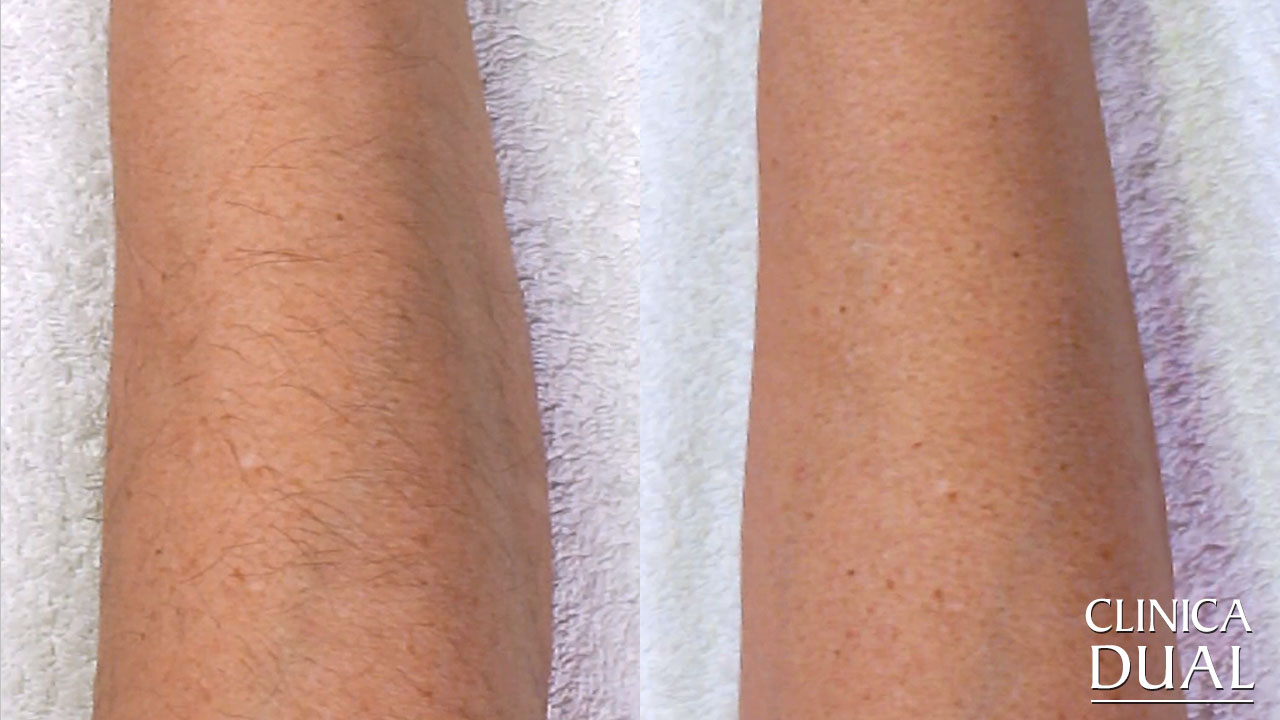 Laser Hair Removal Before and After Pictures | Clínica Dual Valencia