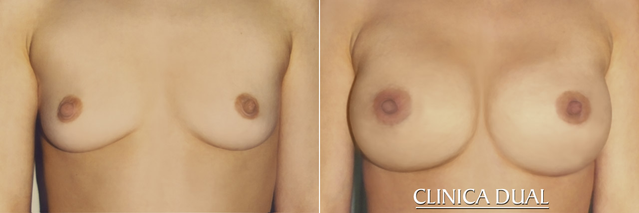Before and after a Breast Augmentation photos: Front view | Clinica Dual Valencia