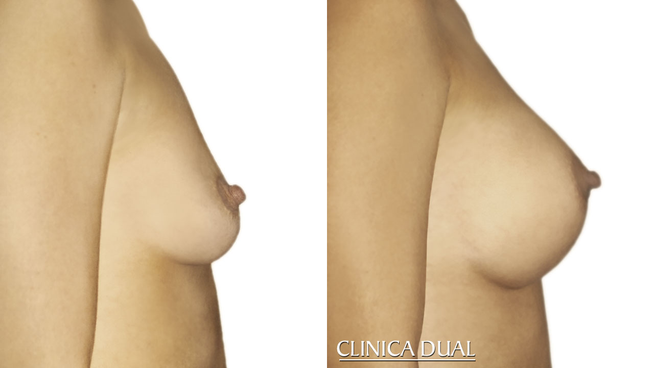 Before and after a Breast Augmentation photos: Profile view | Clinica Dual Valencia