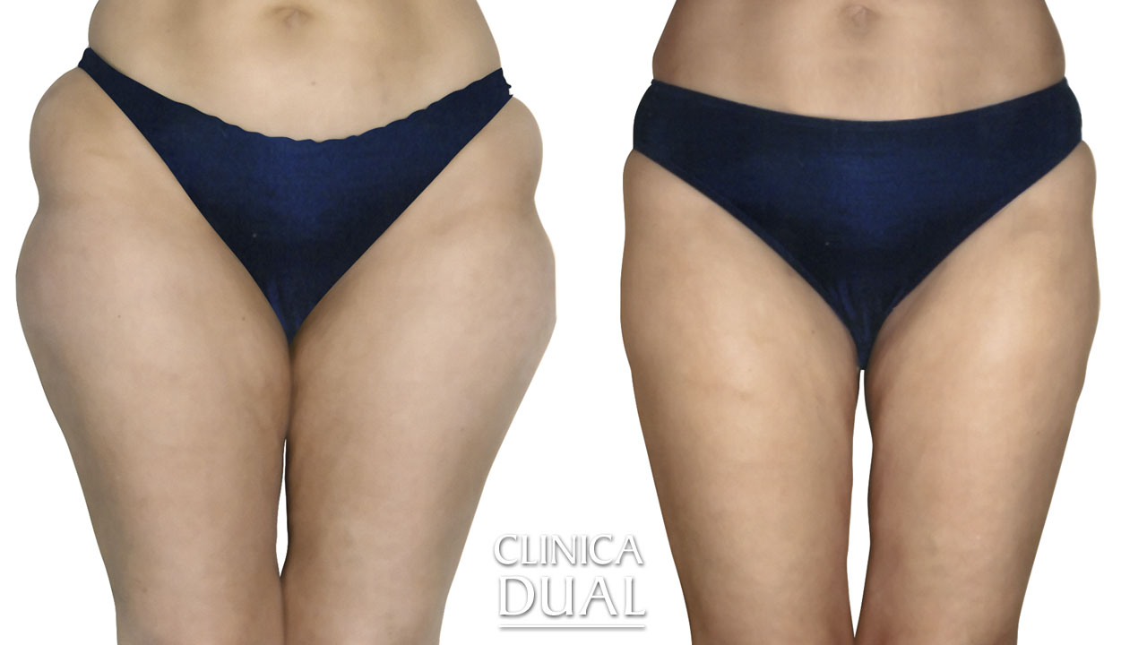Before and after a Liposuction photos. Front view. Clínica Dual Valencia