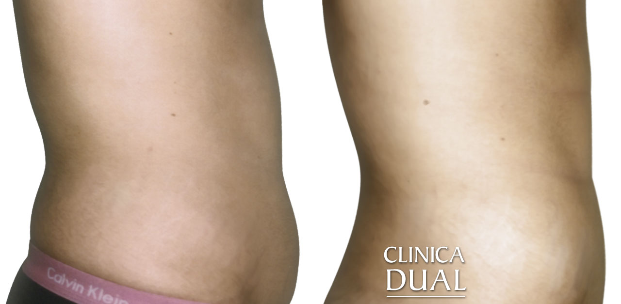 Before and after a Liposuction photos. Profile view. Clínica Dual Valencia