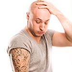 Factores que influyen en la eliminación de tatuajes