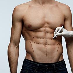 abdominoplastia masculina - clinica dual