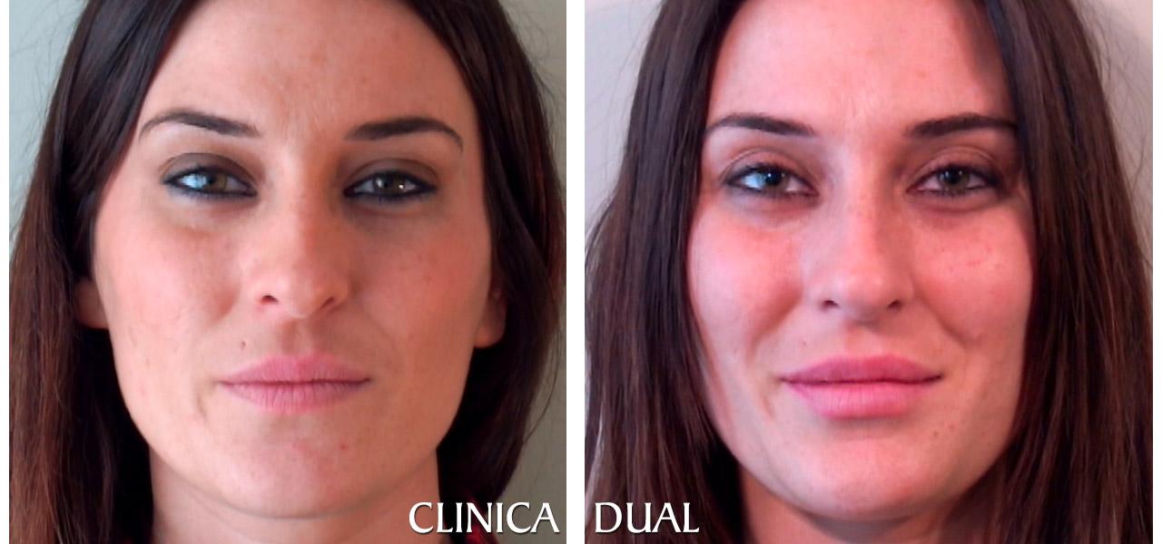Fotos de antes y después de un Aumento de Labios - Vista frontal | Clínica Dual Valencia