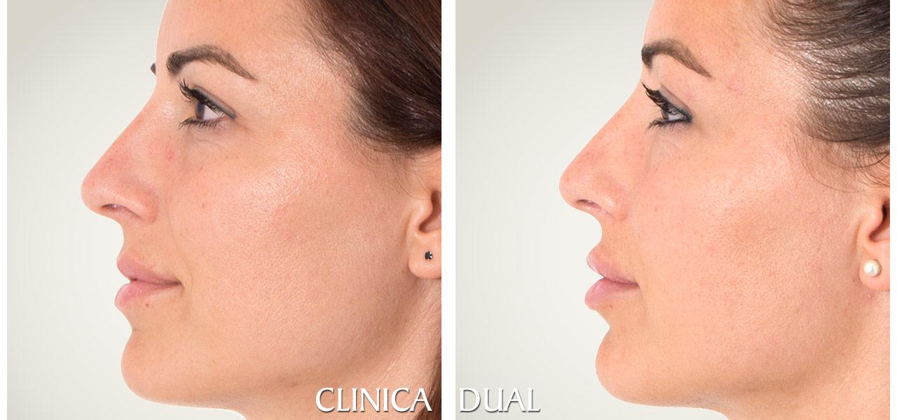 Fotos de antes y después de un Aumento de Labios - Vista lateral | Clínica Dual Valencia