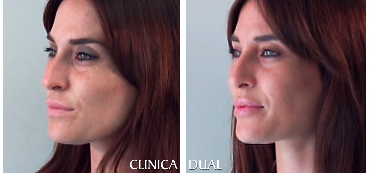 Fotos de antes y después de un Aumento de Labios - Vista de medio lado | Clínica Dual Valencia