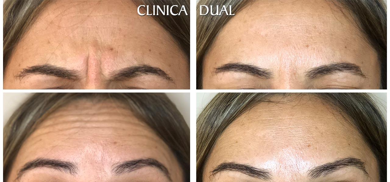 Fotos de antes y después de un tratamiento de Bótox - Vista lateral - Clínica Dual Valencia