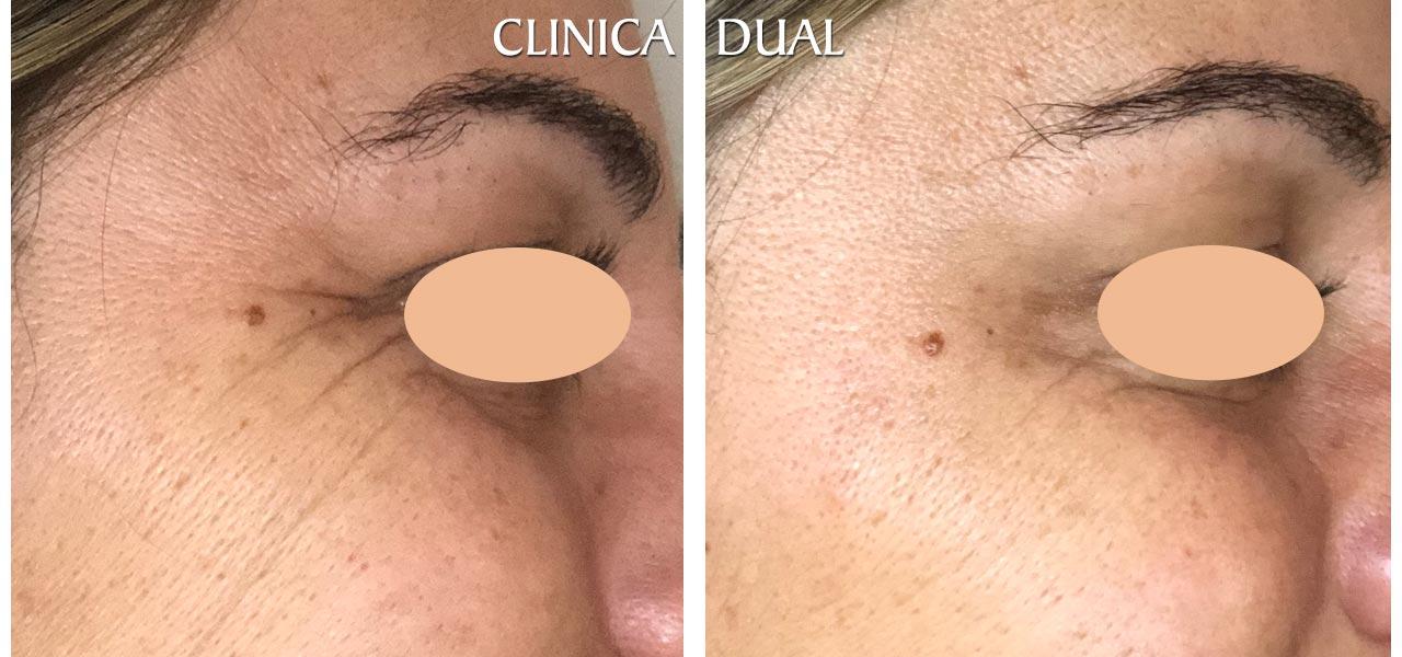 Fotos de antes y después de un tratamiento de Bótox - Vista de perfil - Clínica Dual Valencia