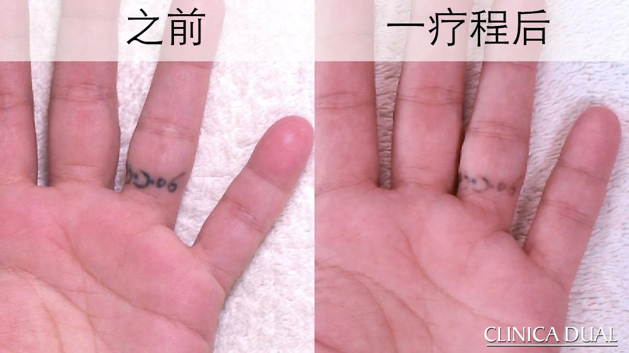 去除纹身治疗前后的照片。 瓦伦西亚DUAL诊所。