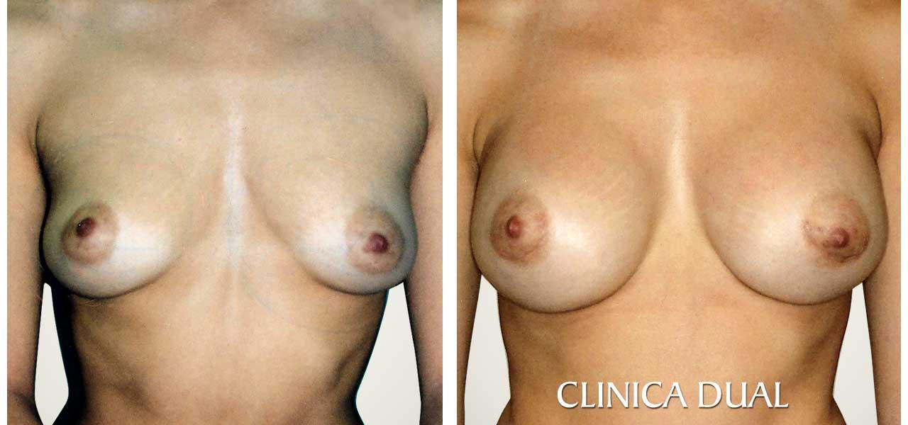 Fotos de antes y después de un Aumento de Pecho - Vista frontal - Clínica Dual Valencia
