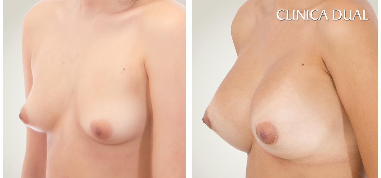Before and after a Breast Augmentation photos | Clinica Dual Valencia