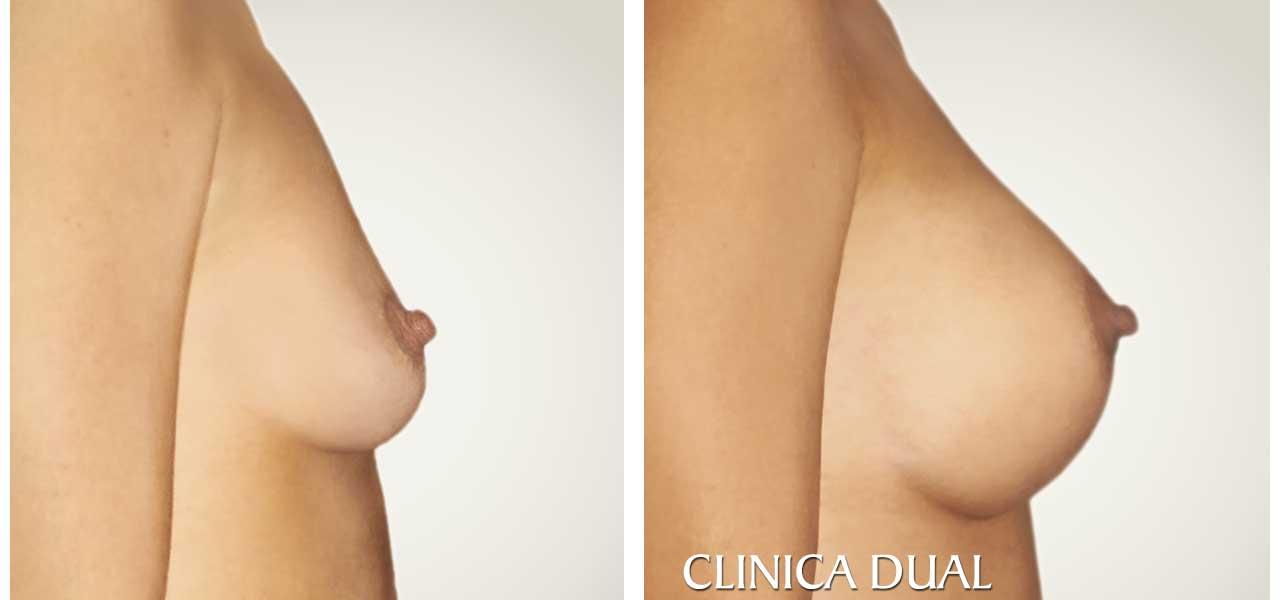 Fotos de antes y después de un Aumento de Pecho - Vista de perfil - Clínica Dual Valencia