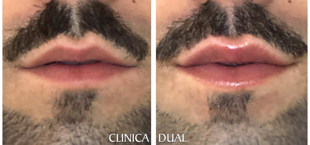 Fotos de antes y después de un Aumento de Labios masculino - Vista frontal | Clínica Dual Valencia