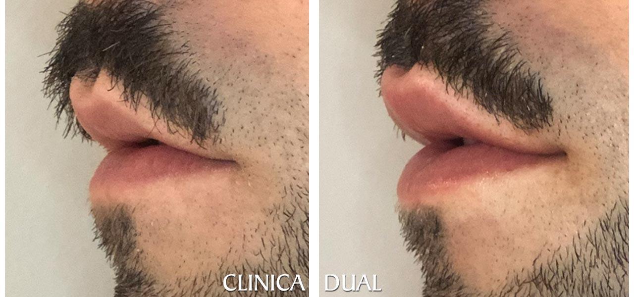 Fotos de antes y después de un Aumento de Labios masculino - Vista lateral | Clínica Dual Valencia
