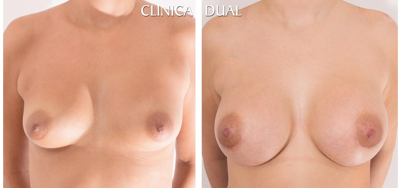 Fotos de antes y después de un Aumento de Pechos - Vista frontal - Clínica Dual Valencia