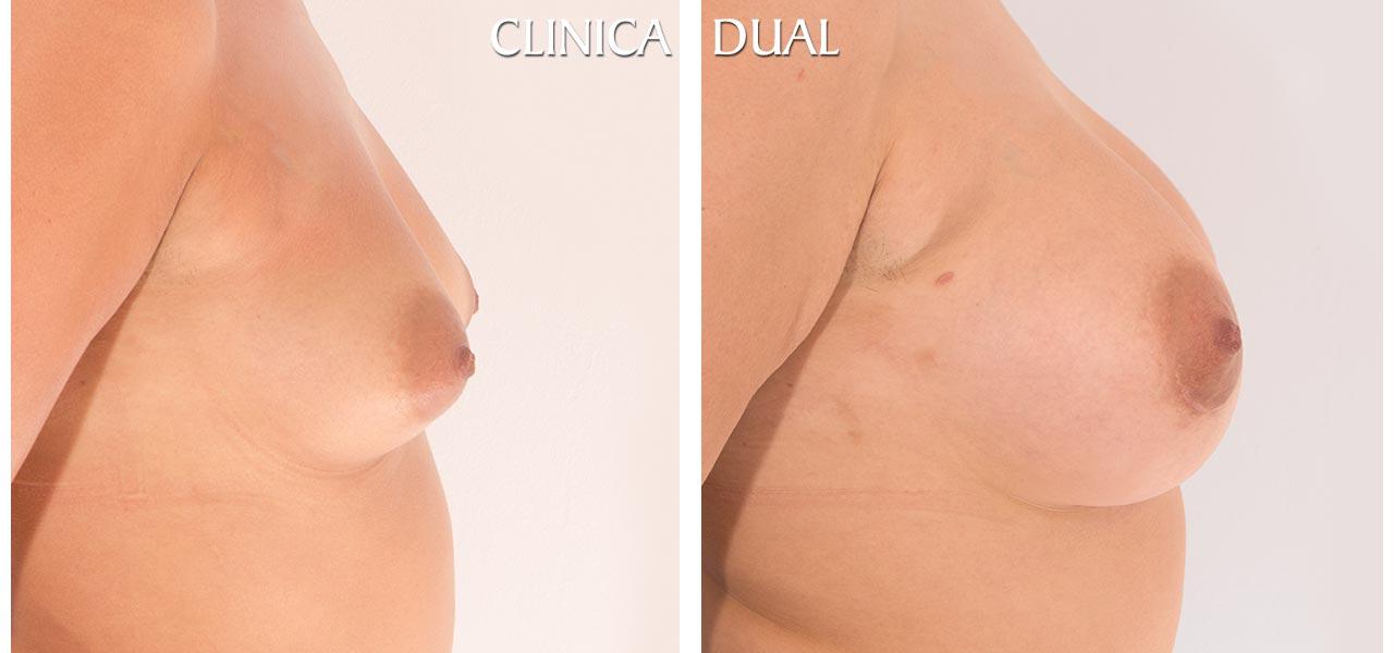 Fotos de antes y después de un Aumento de Pechos - Vista lateral - Clínica Dual Valencia