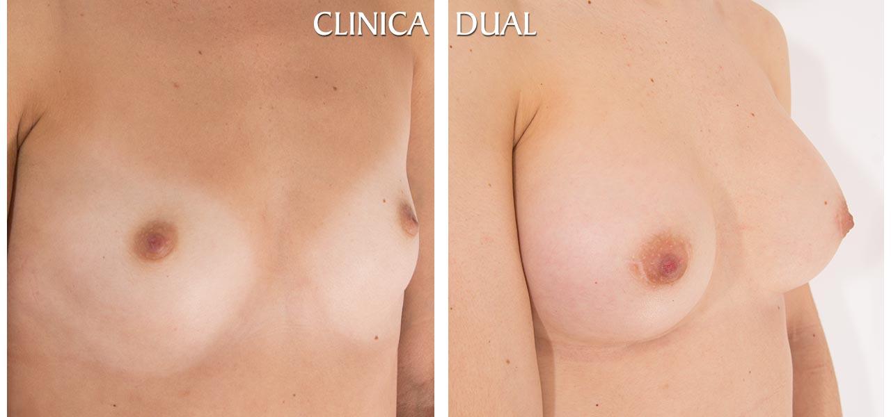 Fotos de antes y después de un Aumento de Pechos - Vista medio lado - Clínica Dual Valencia