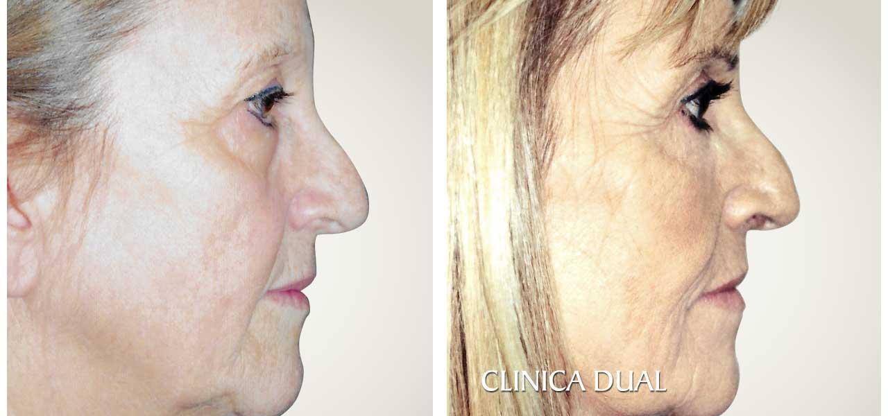 Fotos de antes y después de una Blefaroplastia de Bolsas de los Ojos - Vista de perfil | Clínica Dual Valencia