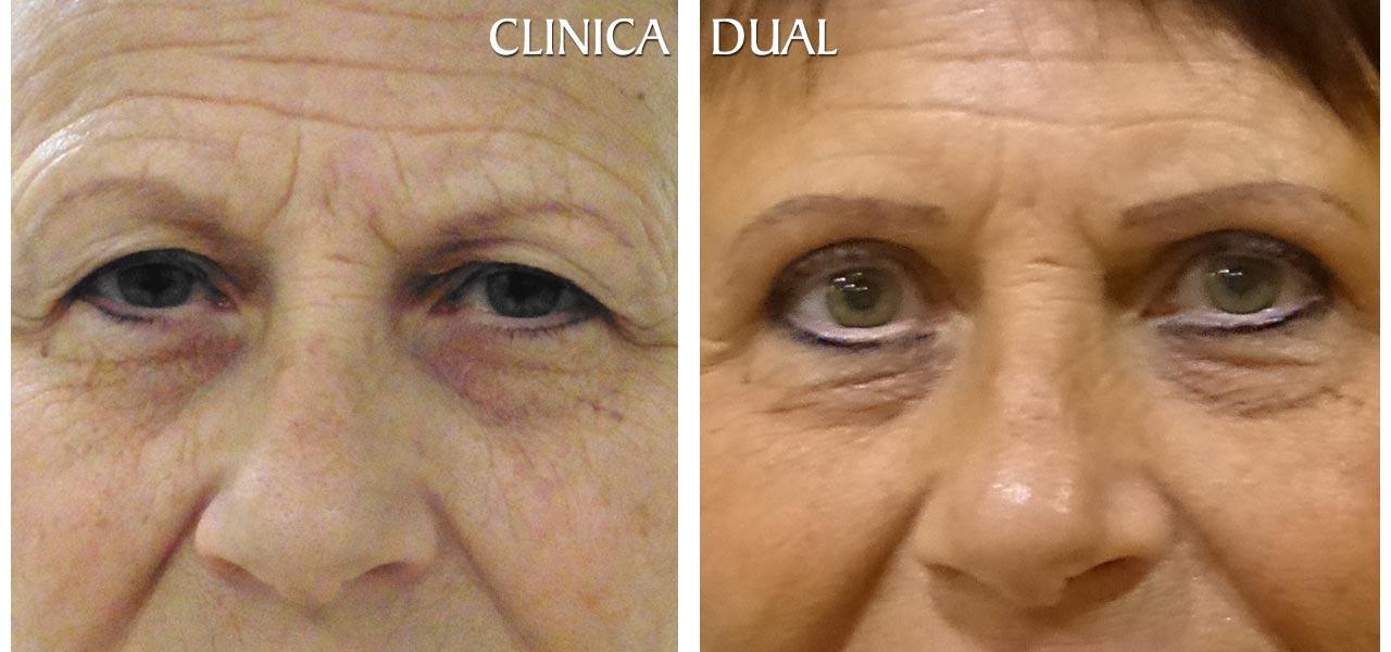 Fotos de antes y después de una Blefaroplastia de Bolsas de los Ojos - Vista frontal | Clínica Dual Valencia