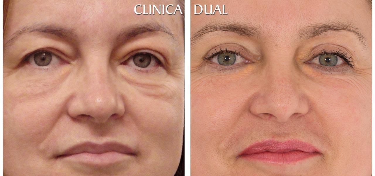 Fotos de antes y después de una Blefaroplastia de Bolsas de los Ojos con extracción de restos de silicona - Vista frontal| Clínica Dual Valencia