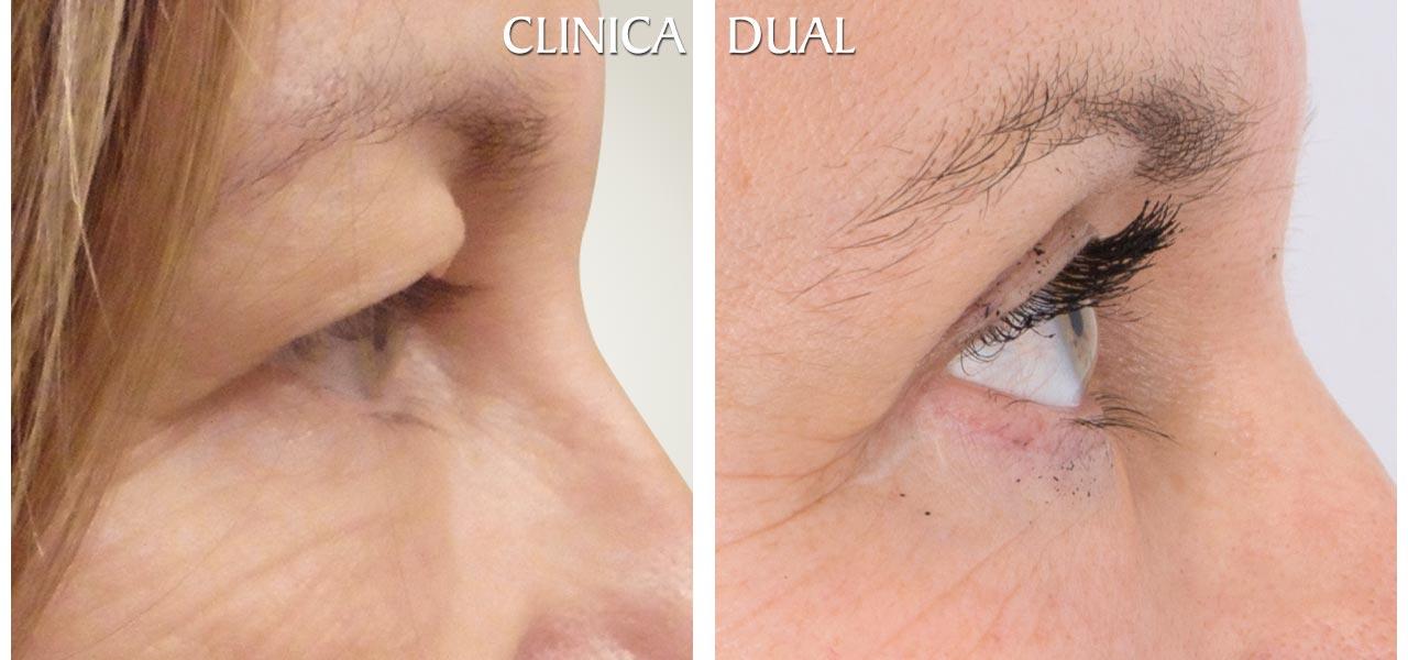 Fotos de antes y después de una Blefaroplastia de Bolsas de los Ojos con extracción de restos de silicona - Vista lateral| Clínica Dual Valencia