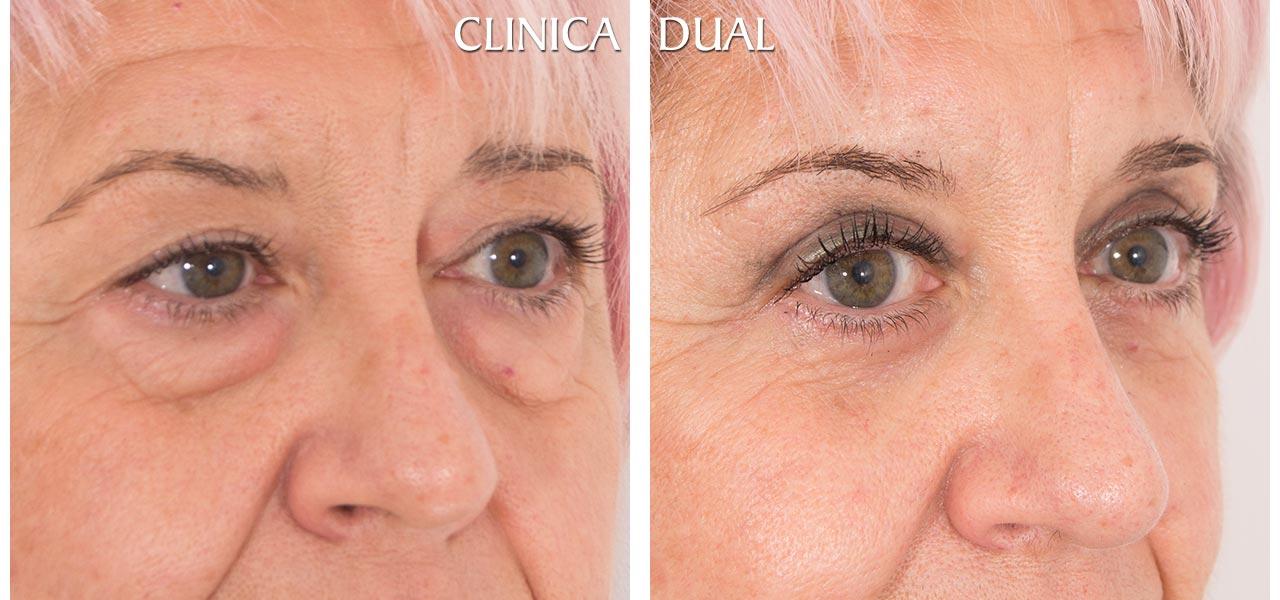Fotos de antes y después de una Blefaroplastia de Bolsas de los Ojos - Vista medio lado | Clínica Dual Valencia