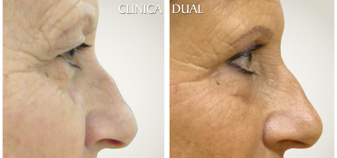 Fotos de antes y después de una Blefaroplastia de Bolsas de los Ojos - Vista lateral | Clínica Dual Valencia