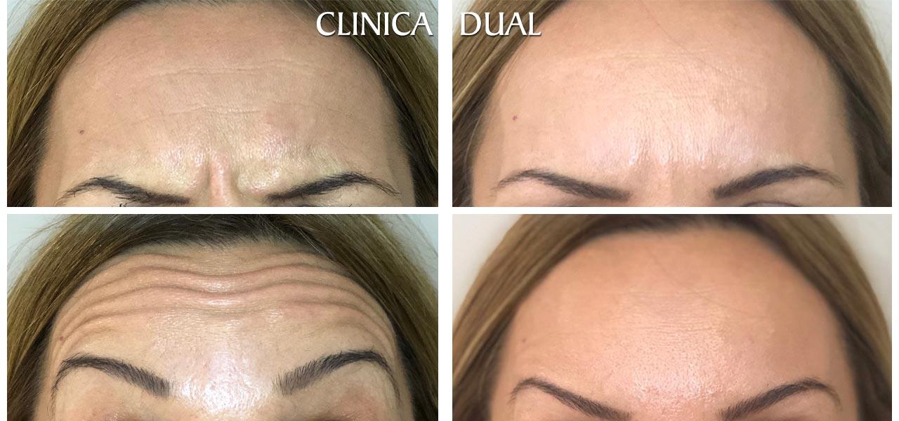Fotos de antes y después de un tratamiento de Bótox - Vista frontal - Clínica Dual Valencia