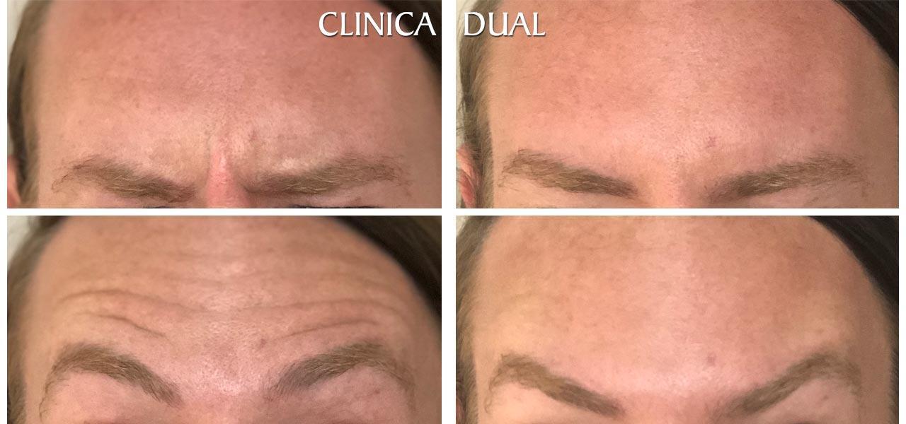 Fotos de antes y después de un tratamiento de Bótox masculino - Vista frontal - Clínica Dual Valencia