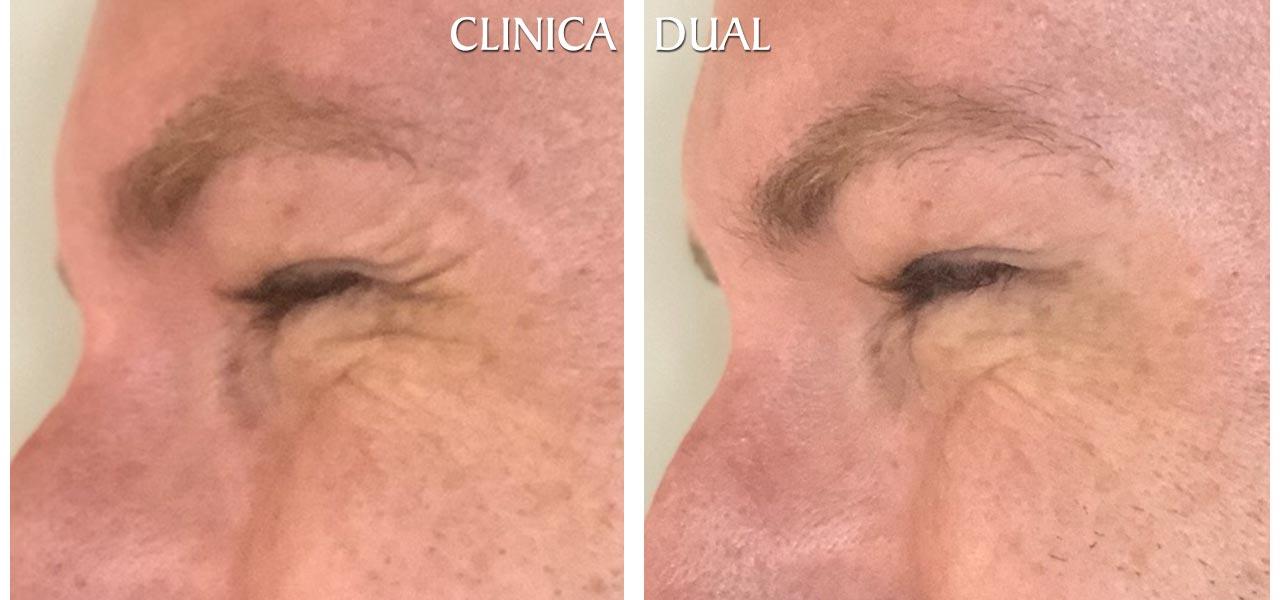 Fotos de antes y después de un tratamiento de Bótox masculino - Vista lateral - Clínica Dual Valencia