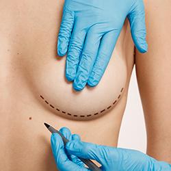 cirugia estetica escoge bien a tu cirujano - clinica dual