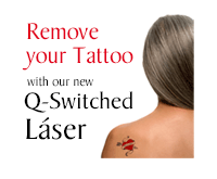 Remove your Tattoo with our new Q-Switched Laser