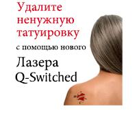 Удалите ненужную татуировку с помощью нового лазера Q-Switched