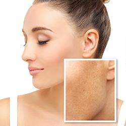 como quitar manchas de melasma en la cara - clinica dual
