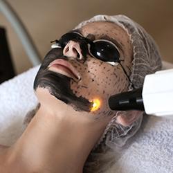 el peeling facial - clinica dual