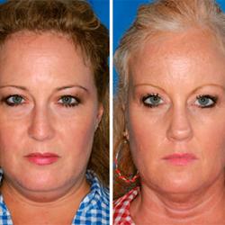 el tabaco y el envejecimiento facial - clinica dual