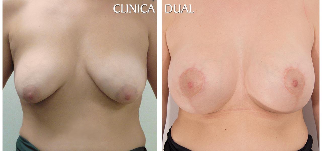 Fotos de antes y después de una Maxtopexia de Elevación de Pecho más Aumento - Vista frontal - Clínica Dual Valencia