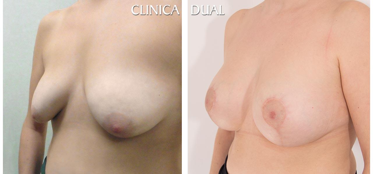 Fotos de antes y después de una Maxtopexia de Elevación de Pecho más Aumento - Vista medio lado - Clínica Dual Valencia