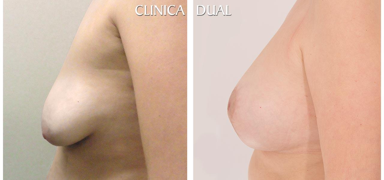 Fotos de antes y después de una Maxtopexia de Elevación de Pecho más Aumento - Vista lateral - Clínica Dual Valencia