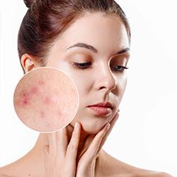 existe una forma de eliminar las marcas del acne - clinica dual